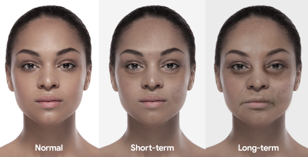 A woman showing the short and long-term affects of sleep deprivation, including eye bags, spots, wrinkles and dry skin.