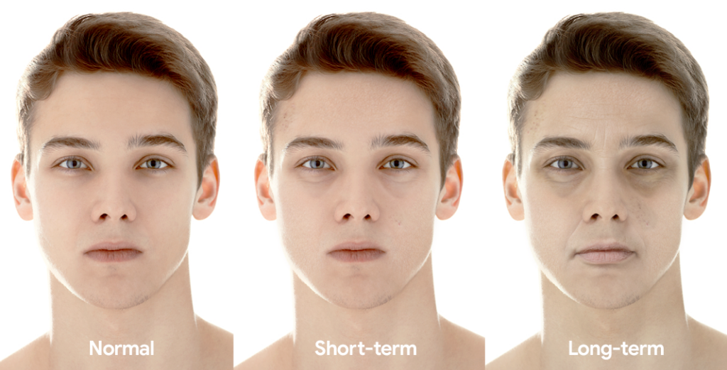 Man showing before, short-term and long-term effects of sleep deprivation on the face
