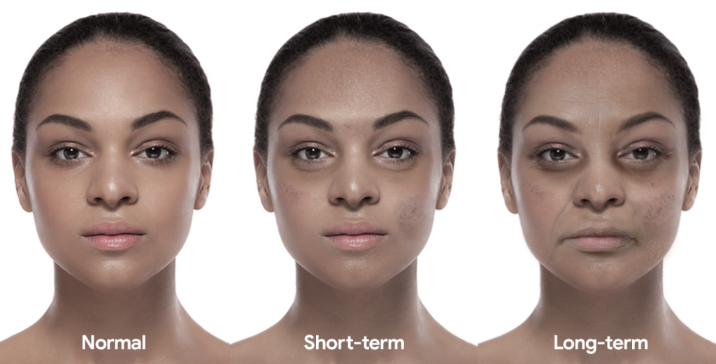 Woman showing before, short-term and long-term effects of sleep deprivation on the face